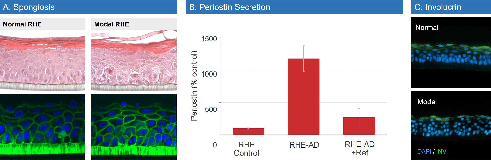 Atopic Dermatitis RHE Data